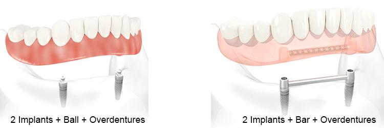 2 Implants Overdentures