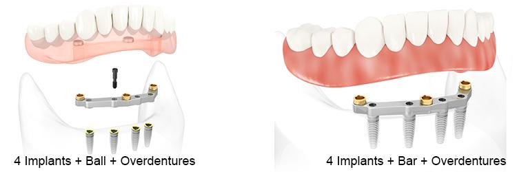 4 Implants Overdentures