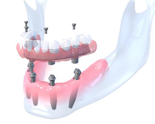 All-on-4 Immediate Function Dental Implants