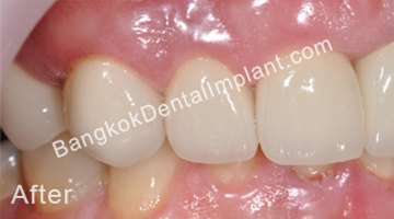 single-implant-2-1